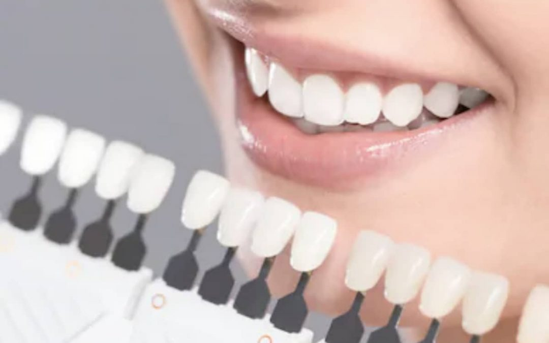 Restaure su dentición con implantes dentales inmediatos versus diferidos