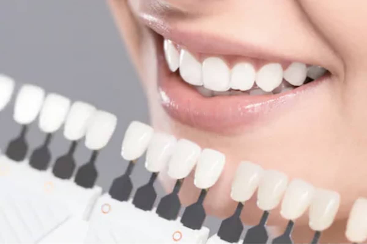 Tenga una bonita sonrisa con los implantes dentales inmediatos
